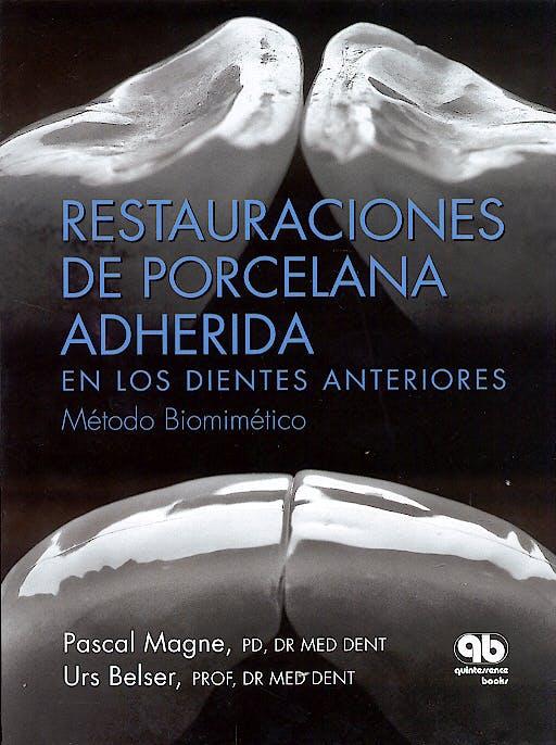 Portada del libro 9788489873285 Restauraciones de Porcelana Adherida en los Dientes Anteriores. Método Biomimético