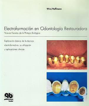 Portada del libro 9788489873315 Electroformación en Odontología Restauradora. Nuevas Facetas