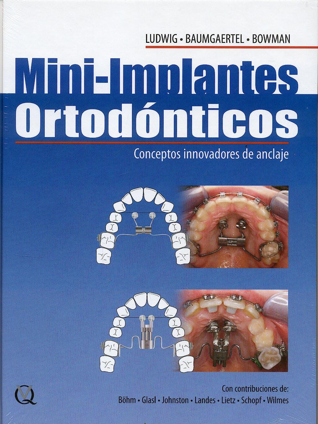 Portada del libro 9788489873421 Mini-Implantes Ortodonticos. Conceptos Innovadores de Anclaje