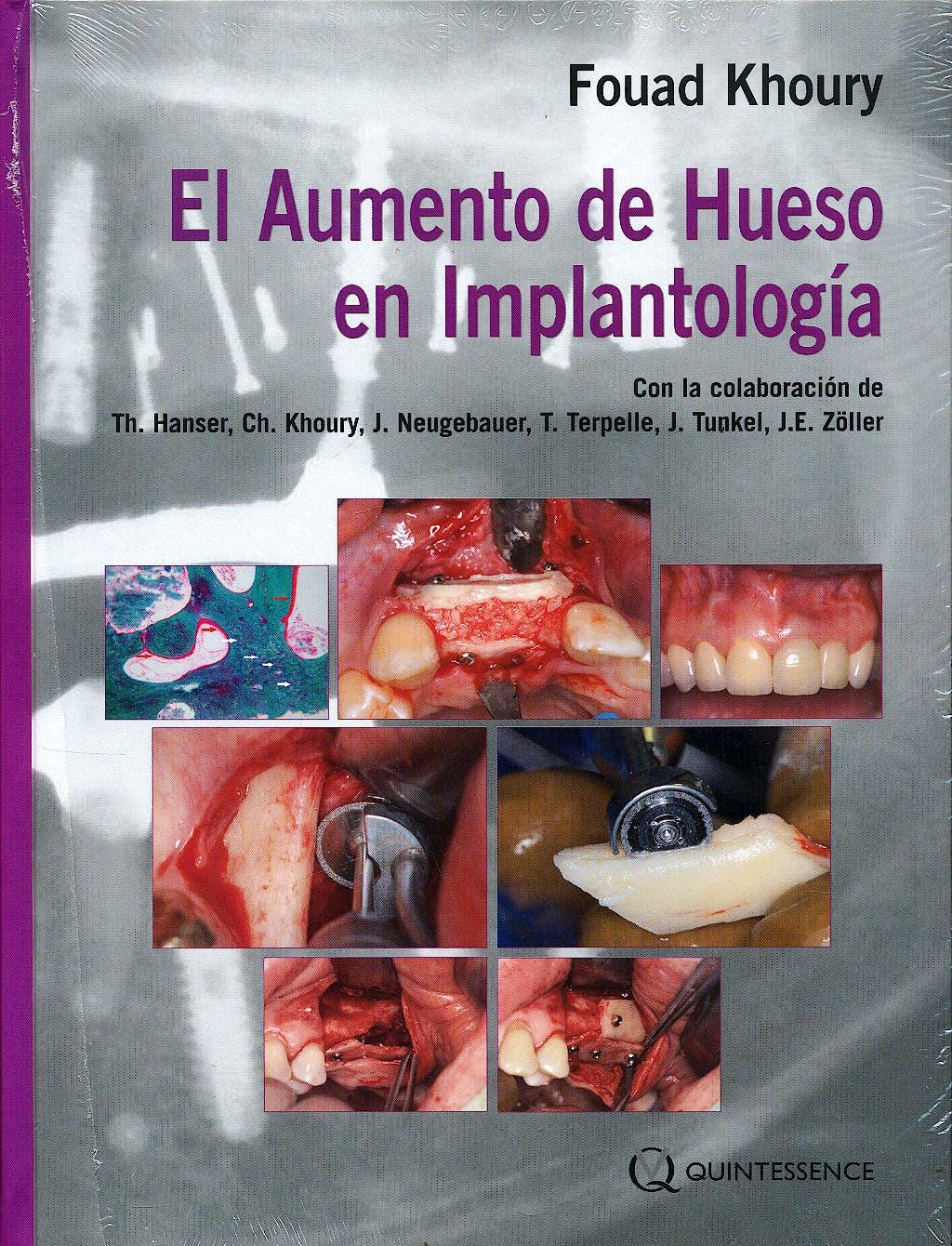 Portada del libro 9788489873445 El Aumento de Hueso en Implantología