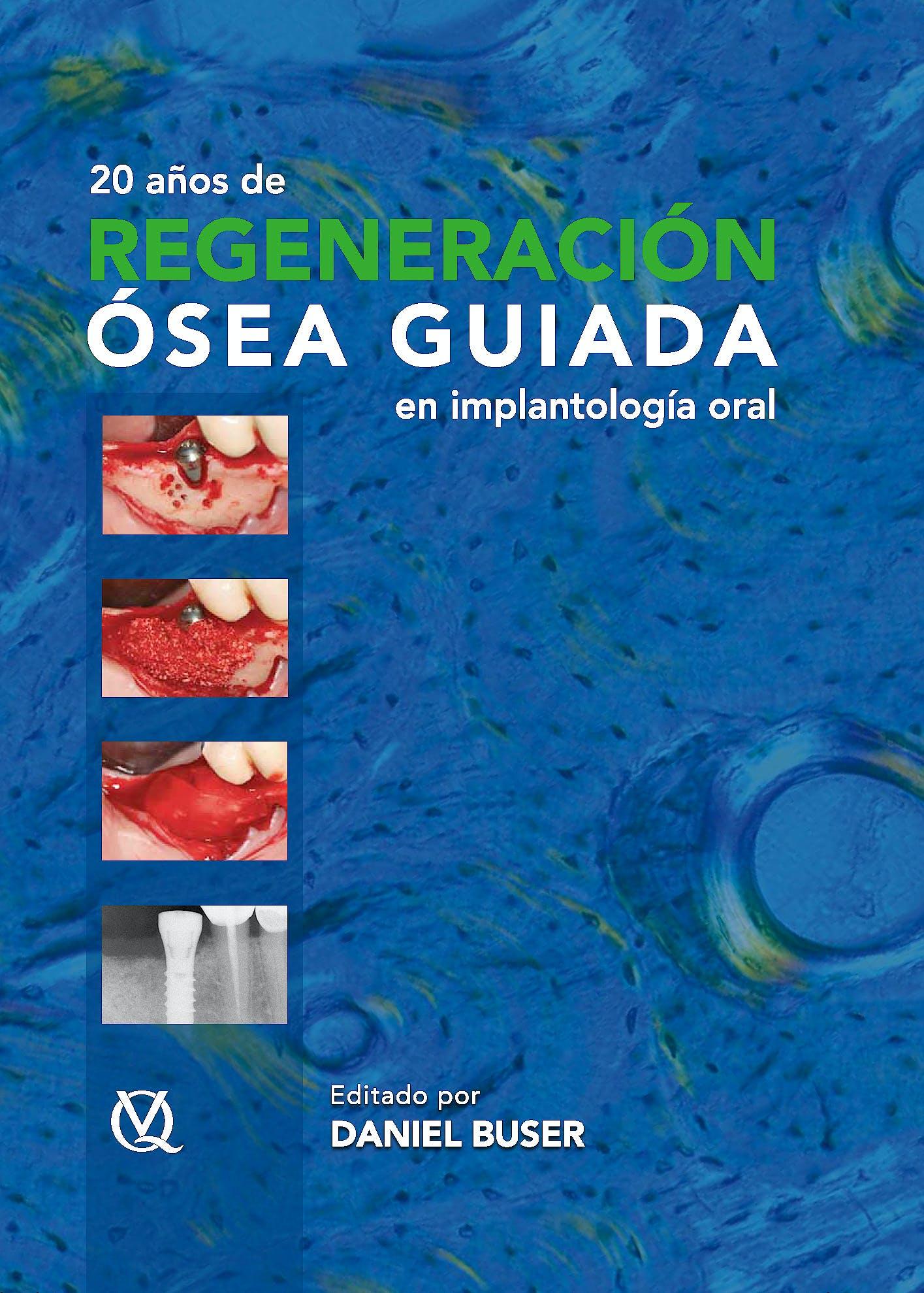 Portada del libro 9788489873490 20 Años de Regeneración Ósea Guiada en Implantología Oral