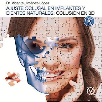 Portada del libro 9788489873582 Ajuste Oclusal en Implantes y Dientes Naturales: Oclusión en 3D + DVD
