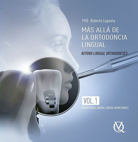 Portada del libro 9788489873643 Mas Allá de la Ortodoncia Lingual, Vol. 1