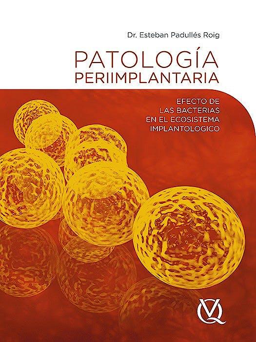 Portada del libro 9788489873674 Patologia Periimplantaria. Efecto de las Bacterias en el Ecosistema Implantologico