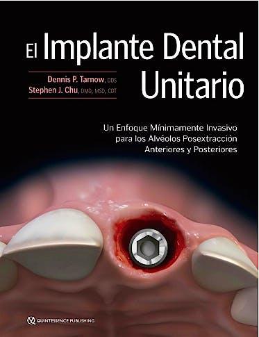 Portada del libro 9788489873865 El Implante Dental Unitario. Un Enfoque Mínimamente Invasivo para los Alvéolos Posextracción Anteriores y Posteriores
