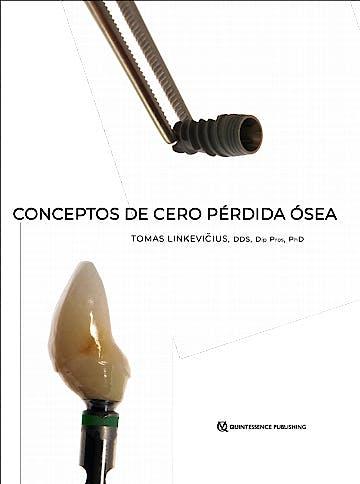 Portada del libro 9788489873872 Conceptos de Cero Pérdida Ósea