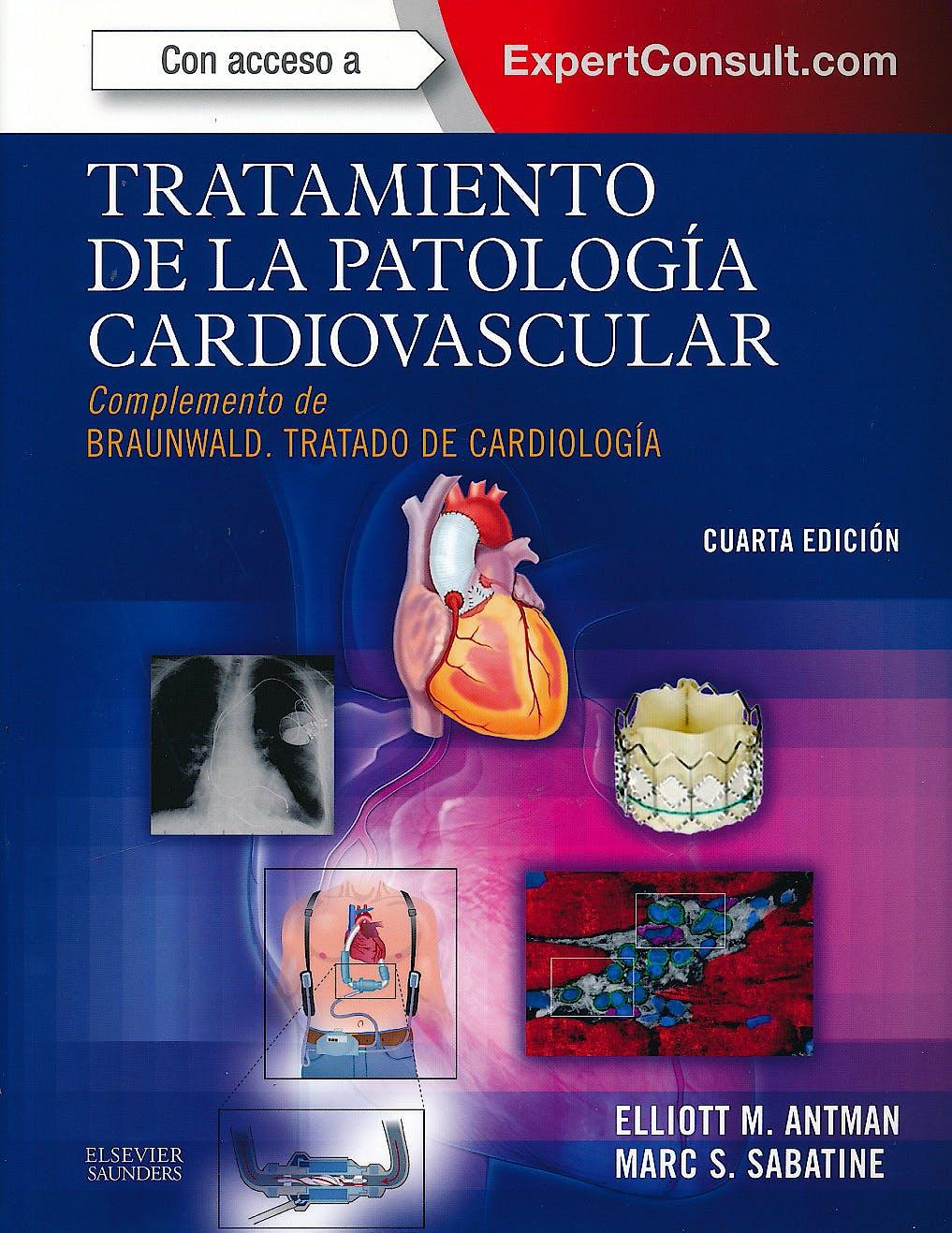 Portada del libro 9788490224397 Tratamiento de la Patologia Cardiovascular. Complemento de Braunwald Tratado de Cardiologia + Acceso Online al Libro en Ingles