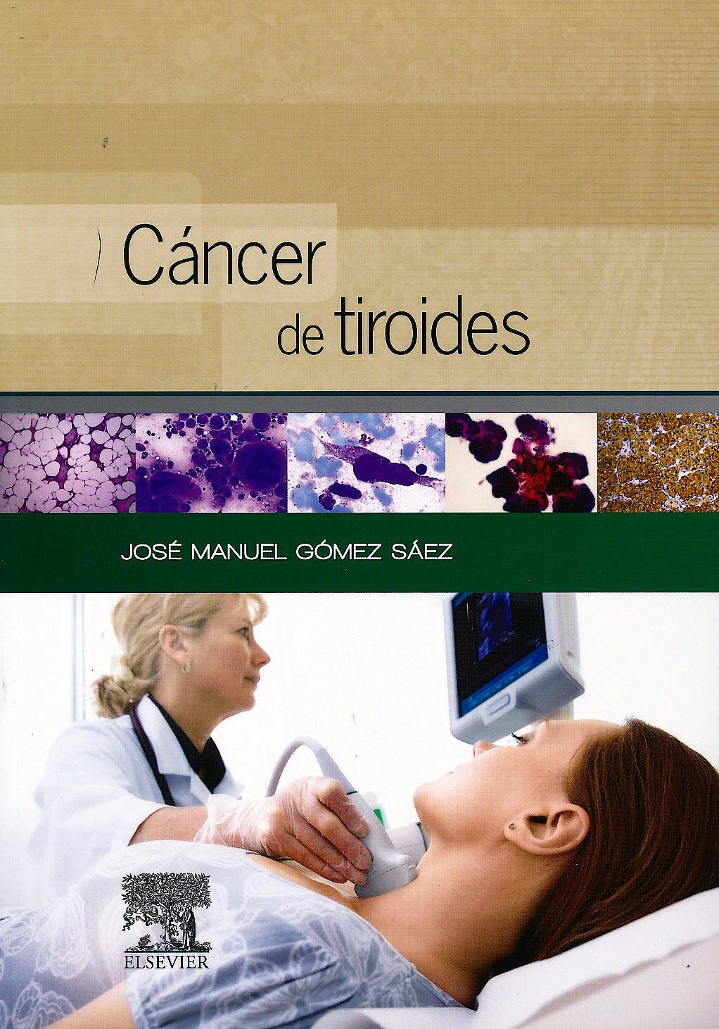 Portada del libro 9788490225028 Cáncer de Tiroides