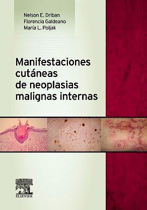 Portada del libro 9788490225288 Manifestaciones Cutaneas de Neoplasias Malignas Internas