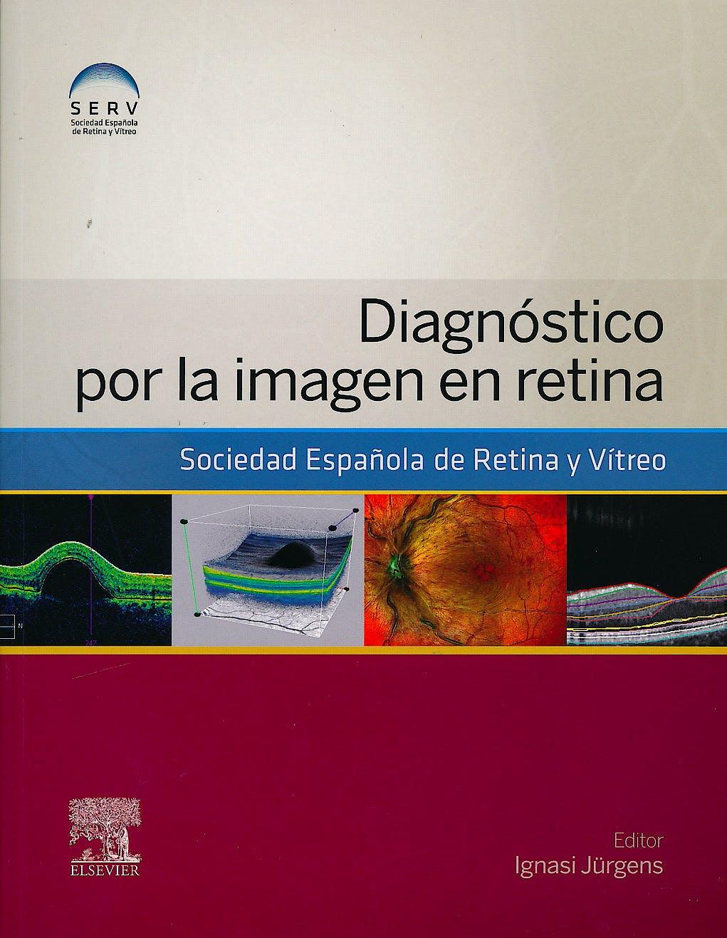 Portada del libro 9788490227213 Diagnóstico por la Imagen en Retina
