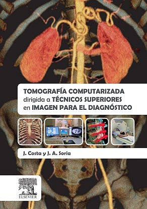 Portada del libro 9788490227442 Tomografía Computarizada Dirigida a Técnicos Superiores en Imagen para el Diagnóstico