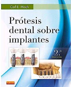 Portada del libro 9788490228630 Prótesis Dental sobre Implantes