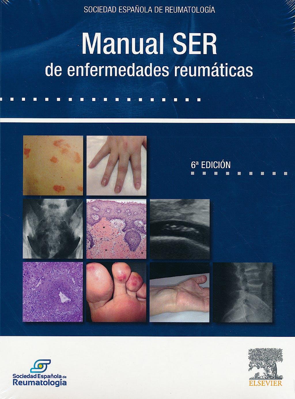 Portada del libro 9788490229033 Manual SER de Enfermedades Reumáticas