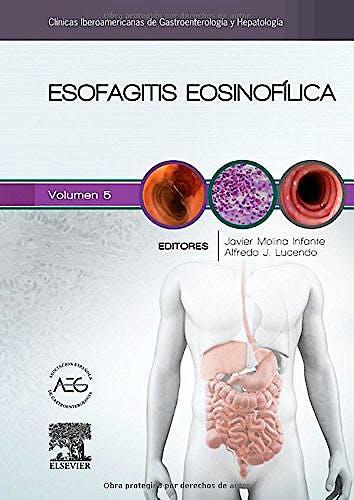 Portada del libro 9788490229545 Esofagitis Eosinofílica (Clínicas Iberoamericanas de Gastroenterología y Hepatología, Vol. 5)