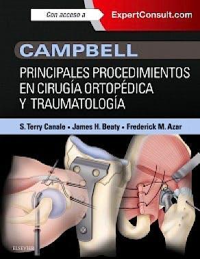 Portada del libro 9788490229859 Campbell Principales Procedimientos en Cirugía Ortopédica y Traumatología + Acceso Online