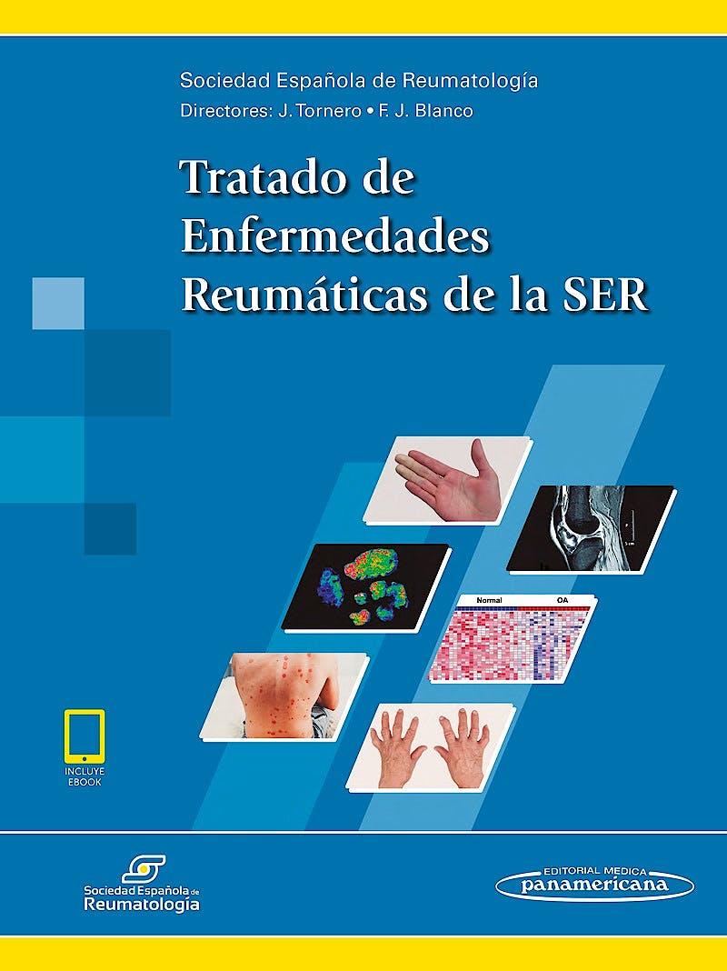 Portada del libro 9788491102816 Tratado de Enfermedades Reumáticas de la SER (Incluye E-Book)