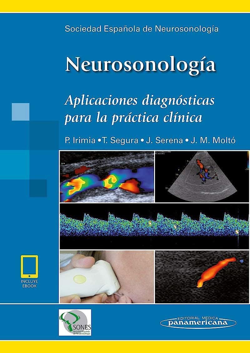 Portada del libro 9788491104766 Neurosonología. Aplicaciones Diagnósticas para la Práctica Clínica (Incluye eBook)