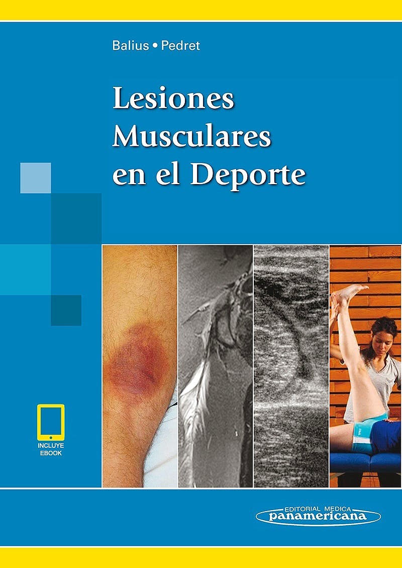 Portada del libro 9788491104797 Lesiones Musculares en el Deporte (incluye eBook)