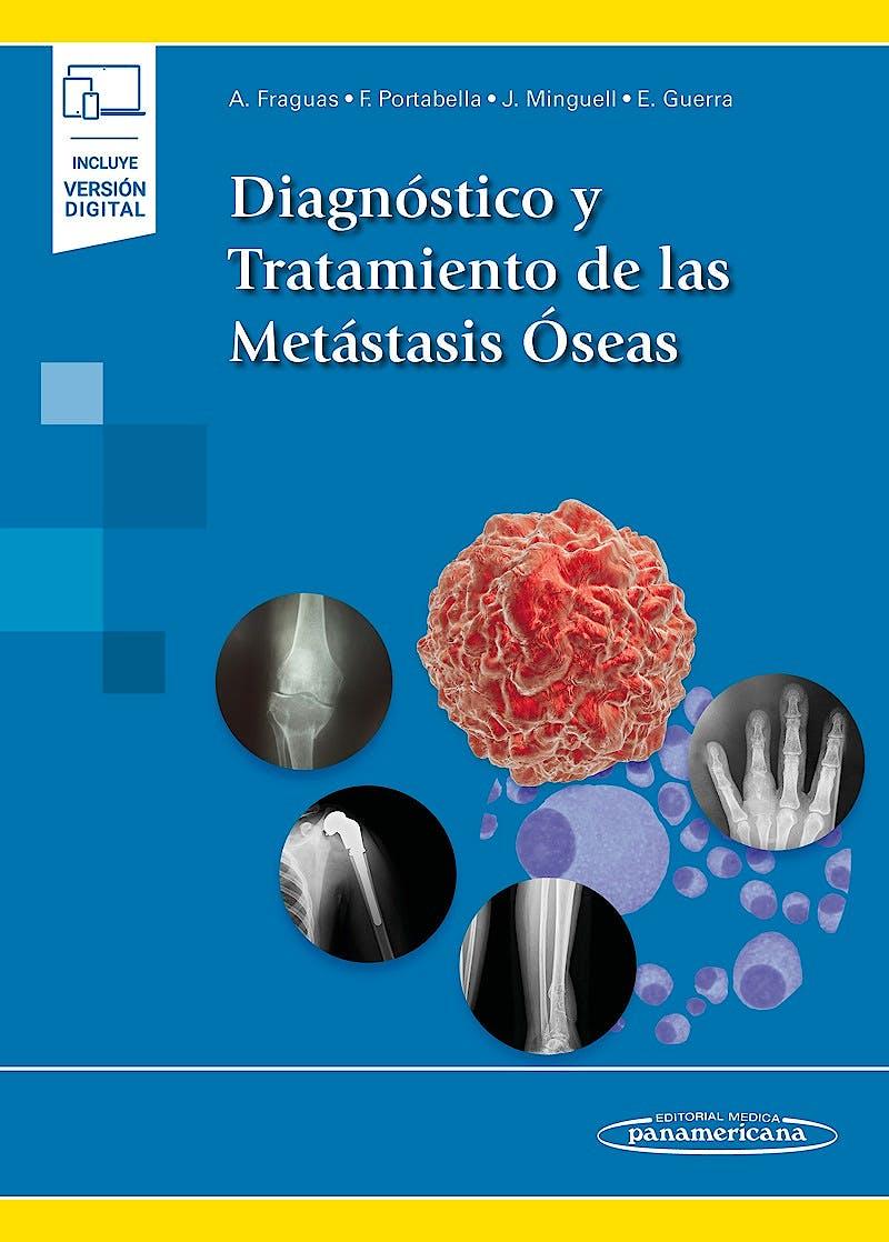 Portada del libro 9788491107804 Diagnóstico y Tratamiento de las Metástasis Óseas (Incluye Versión Digital)