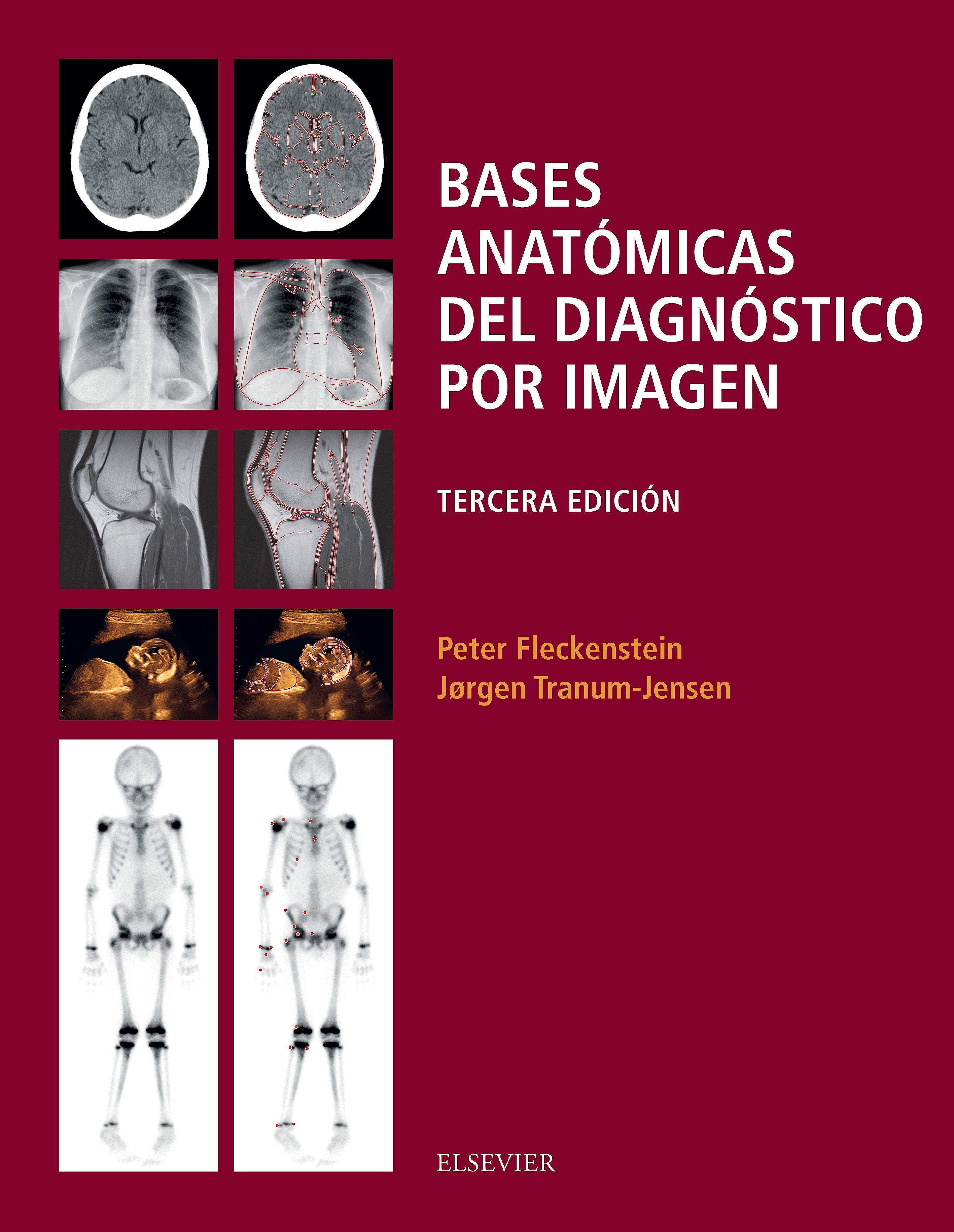 Portada del libro 9788491130000 Bases Anatómicas del Diagnóstico por Imagen