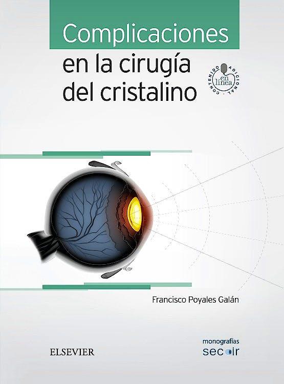 Portada del libro 9788491130345 Complicaciones en la Cirugía del Cristalino (Monografías SECOIR)