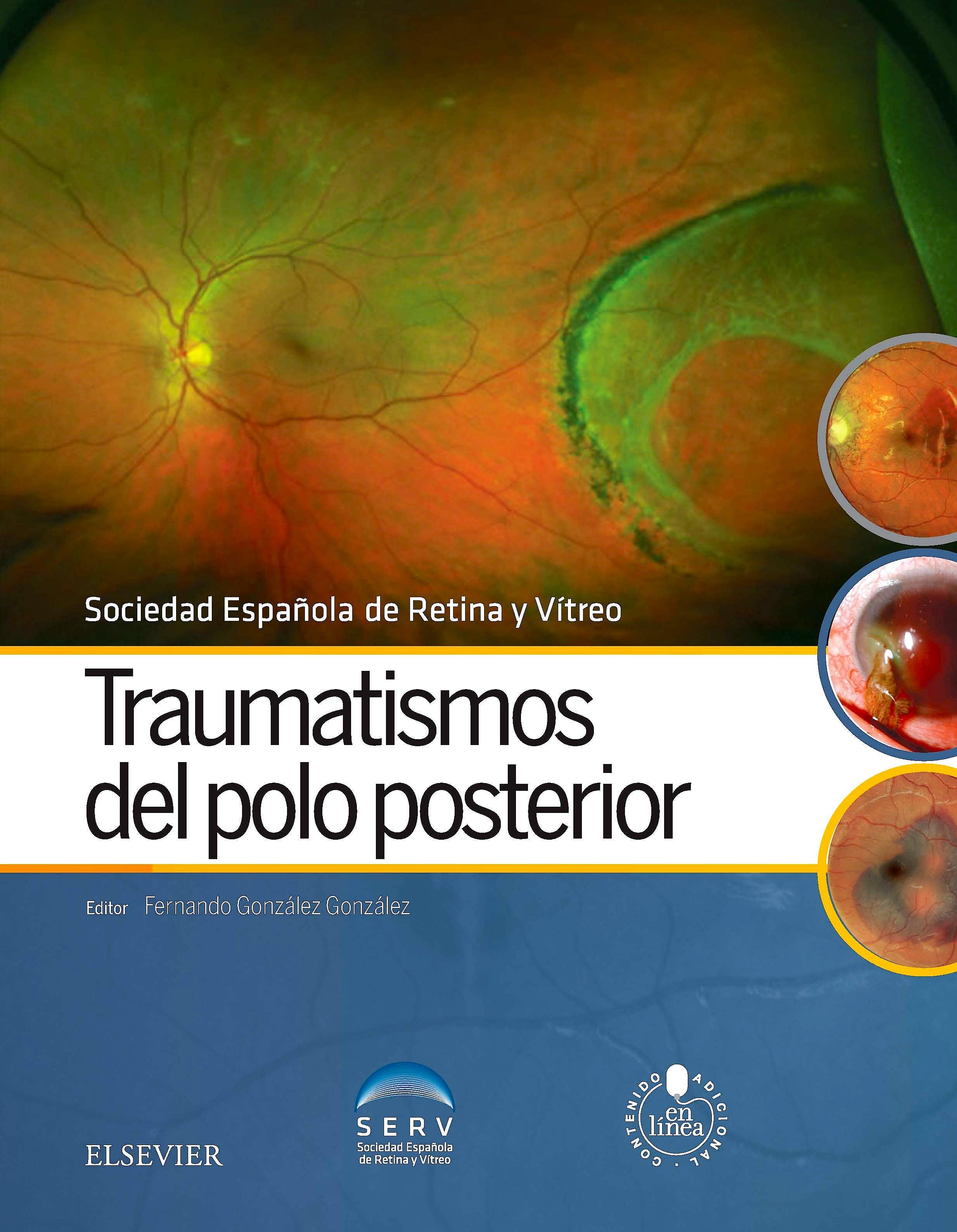 Portada del libro 9788491130529 Traumatismos del Polo Posterior + Acceso Online