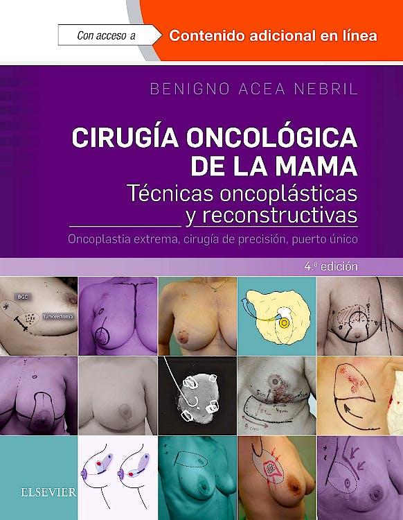 Portada del libro 9788491131120 Cirugía Oncológica de la Mama. Técnicas Oncoplásticas y Reconstructivas. Oncoplastia Extrema, Cirugía de Precisión, Puerto Único + Acceso Online