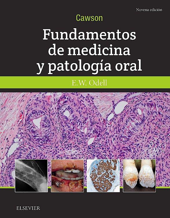 Portada del libro 9788491133155 Cawson Fundamentos de Medicina y Patología Oral
