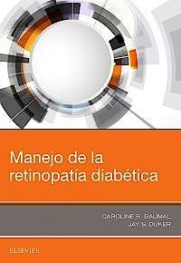 Portada del libro 9788491133735 Manejo de la Retinopatía Diabética