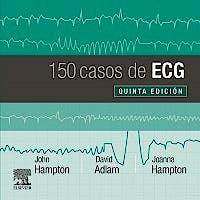 Portada del libro 9788491135043 150 Casos de ECG