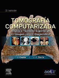 Portada del libro 9788491136477 Tomografía Computarizada Dirigida a Técnicos Superiores en Imagen para el Diagnóstico