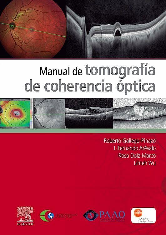 Portada del libro 9788491138297 Manual de Tomografía de Coherencia Óptica