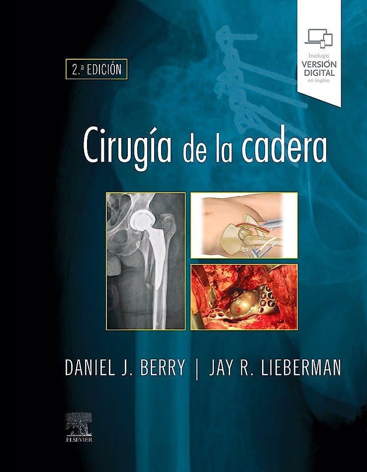 Portada del libro 9788491139003 Cirugía de la Cadera