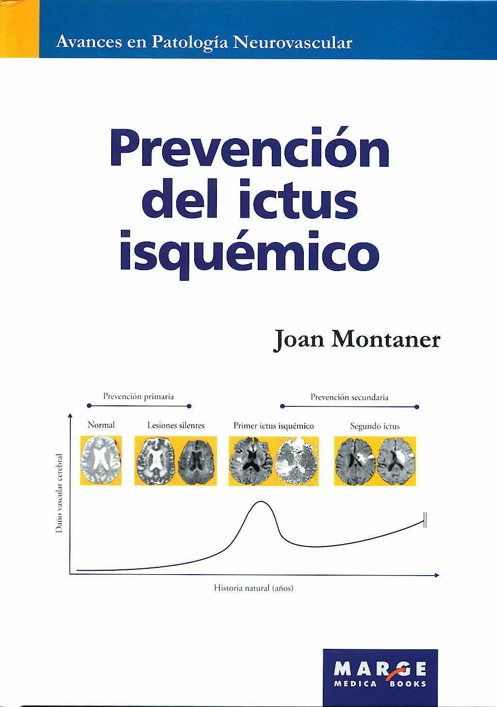 Portada del libro 9788492442089 Prevención del Ictus Isquémico (Avances en Patología Neurovascular, Vol. 2)