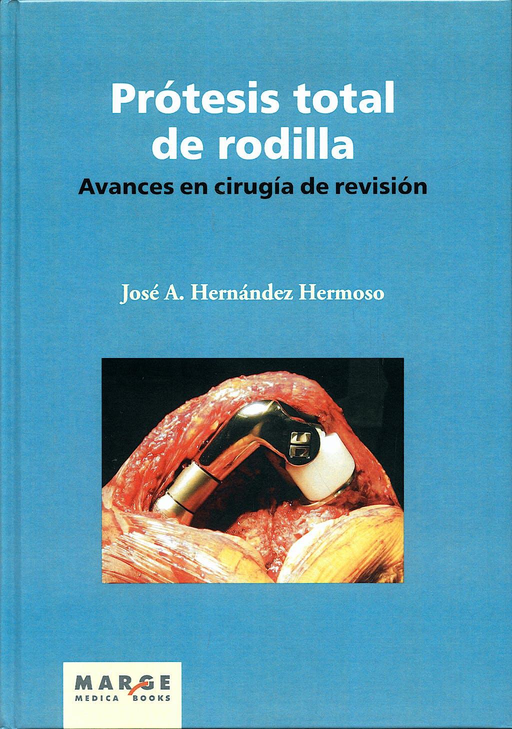 Portada del libro 9788492442119 Protesis Total de Rodilla. Avances en Cirugia de Revision