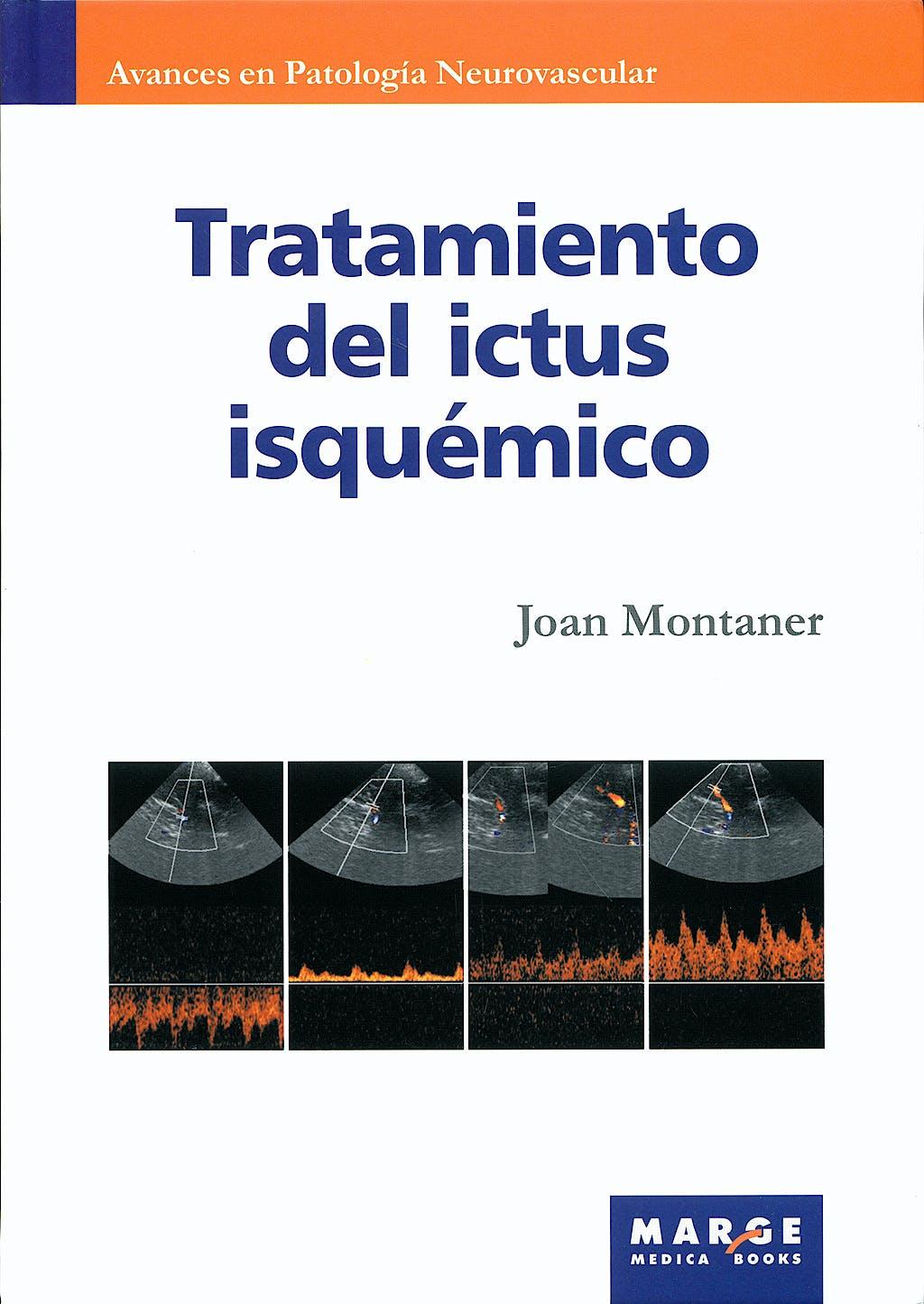 Portada del libro 9788492442133 Tratamiento del Ictus Isquemico (Avances en Patologia Neurovascular, Vol. 3)