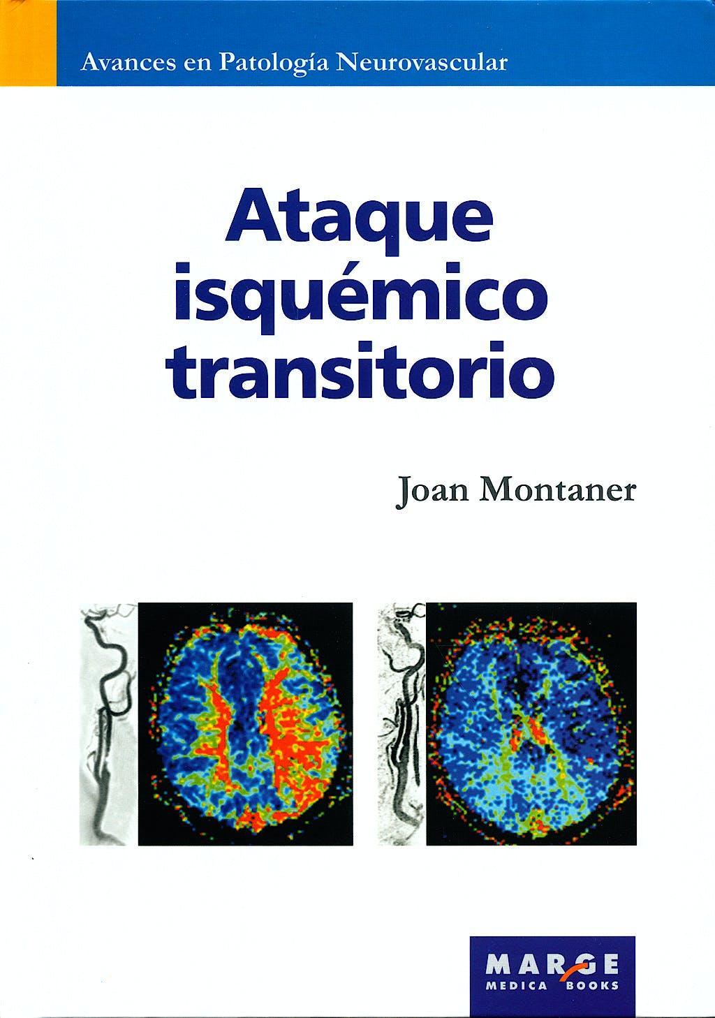 Portada del libro 9788492442485 Ataque Isquemico Transitorio (Avances en Patologia Neurovascular, Vol. 5)