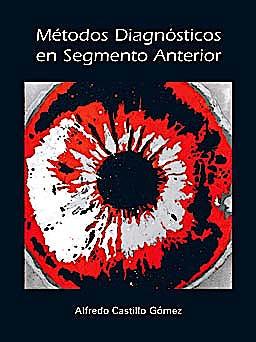 Portada del libro 9788493314491 Métodos Diagnósticos en Segmento Anterior (Monografías SECOIR)