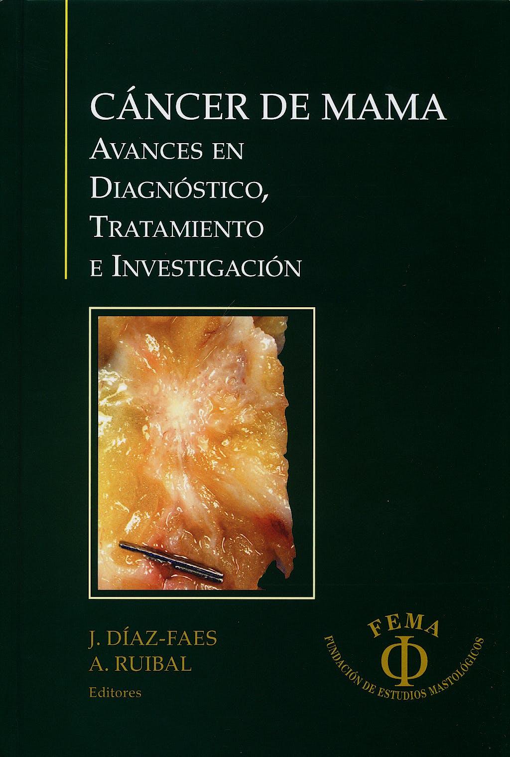 Portada del libro 9788493457839 Cancer de Mama. Avances en Diagnostico Tratamiento e Investigacion