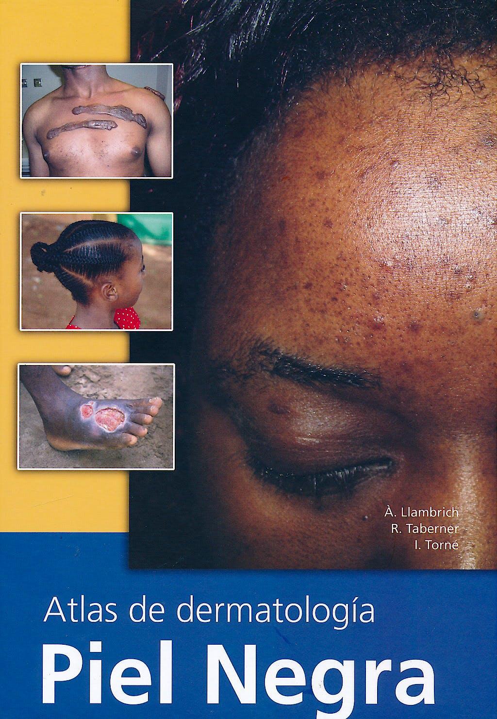 Portada del libro 9788493664640 Atlas de Dermatologia. Piel Negra