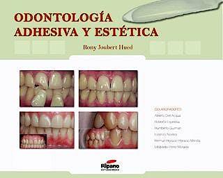 Portada del libro 9788493723828 Odontologia Adhesiva y Estetica