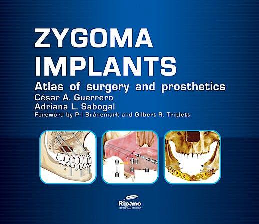 Portada del libro 9788493779399 Zygoma Implants