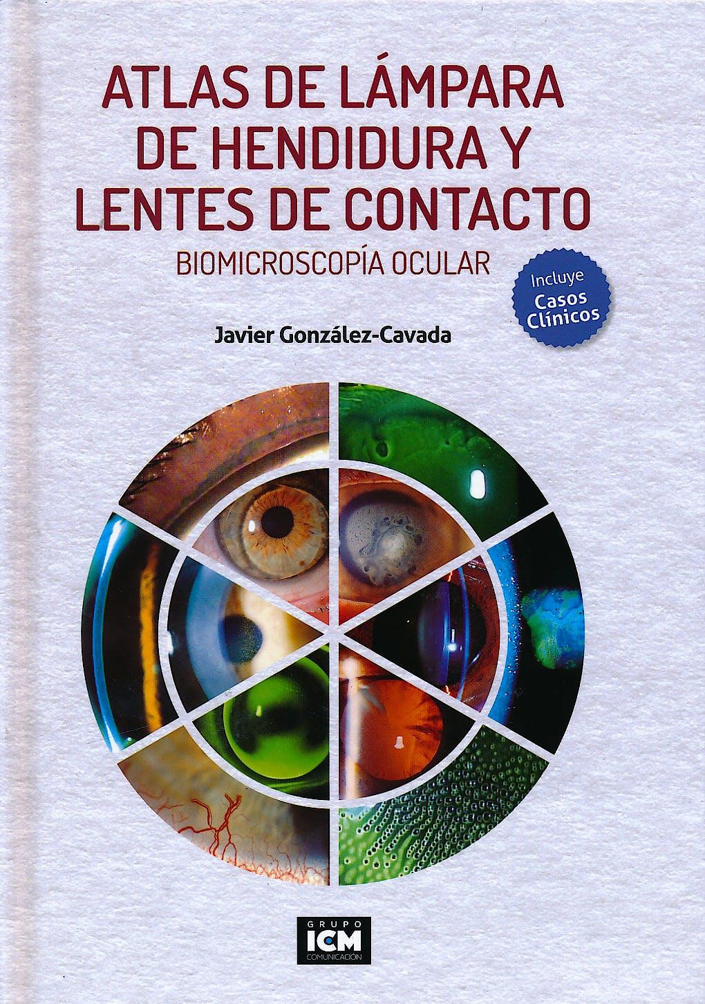 Portada del libro 9788493965686 Atlas de Lámpara de Hendidura y Lentes de Contacto. Biomicroscopía Ocular