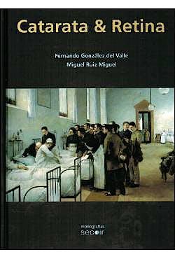 Portada del libro 9788493989828 Catarata y Retina (Monografías SECOIR)