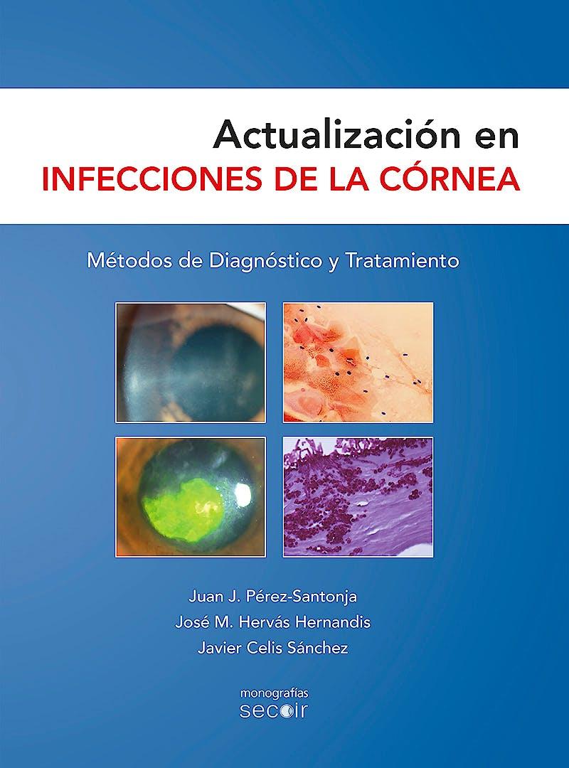 Portada del libro 9788493989835 Actualización en Infecciones de la Córnea. Métodos de Diagnóstico y Tratamiento (Monografías SECOIR)