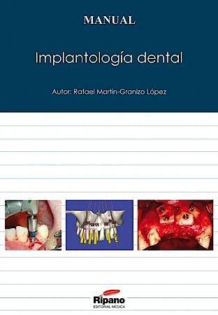 Portada del libro 9788494023279 Implantologia Dental
