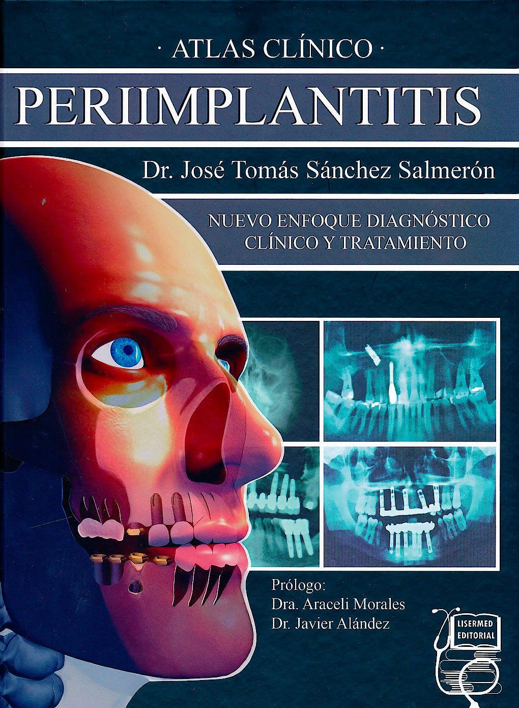 Portada del libro 9788494231803 Atlas Clínico Periimplantitis. Nuevo Enfoque Diagnóstico Clínico y Tratamiento