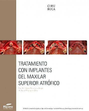 Portada del libro 9788494260117 Tratamiento con Implantes del Maxilar Superior Atrofico