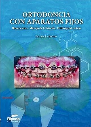 Portada del libro 9788494260162 Ortodoncia con Aparatos Fijos. Biomecánica, Manejo de la Fricción, Orthospeed System