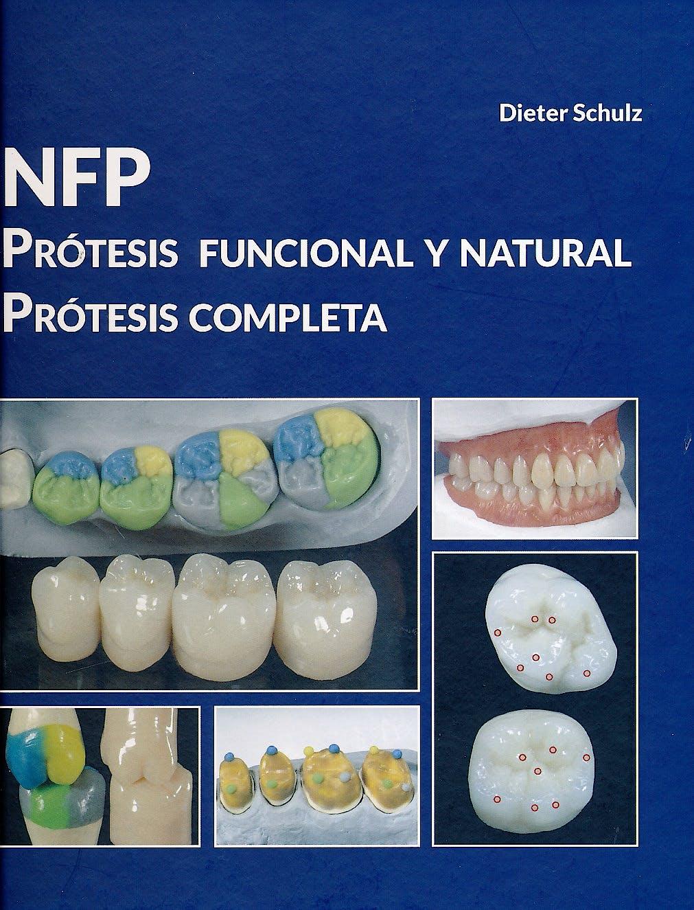 Portada del libro 9788494466304 NFP Prótesis Funcional y Natural. Prótesis Completa